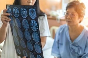 Magnetic Resonance Imaging (MRI) film for neurological medical treatment